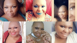 My bald is beautiful collage