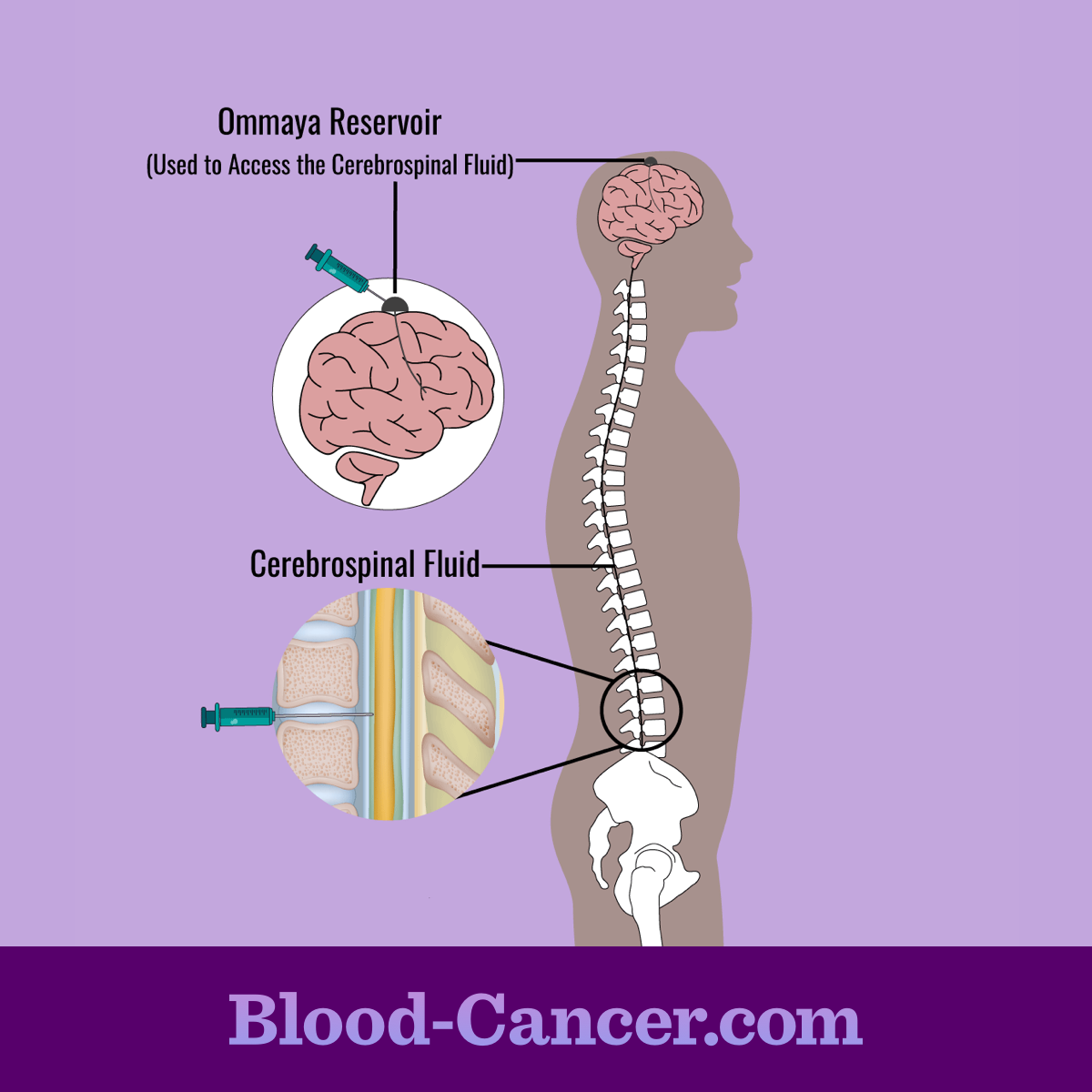 Cerebrolspinal Fluid Chemotherapy