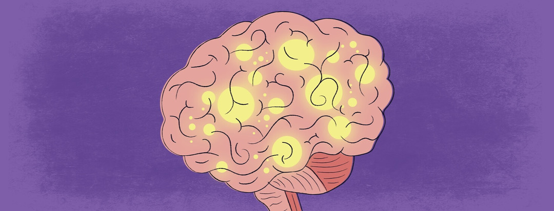 a brain with parts lit up showing endorphins being released